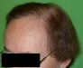 Hajátültetés után, FUT módszer