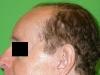 Hajátültetés műtét előtt