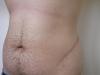 3 páciens, hegkorrekció után 6 hónappal