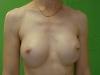 4-páciens, műtét után, izom alatt, cseppforma, 290ml, nem feszít