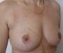 3Páciens, műtét után, invert T heggel