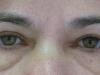 2-alsó, műtét előtt