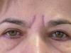 2-alsó, műtét előtt (homlokráncba töltőanyag)